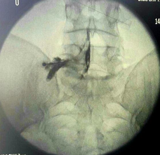Bel Fıtığının Ameliyatsız Tedavi Yöntemleri: Transforaminal / Kaudal Epidural Enjeksiyon
