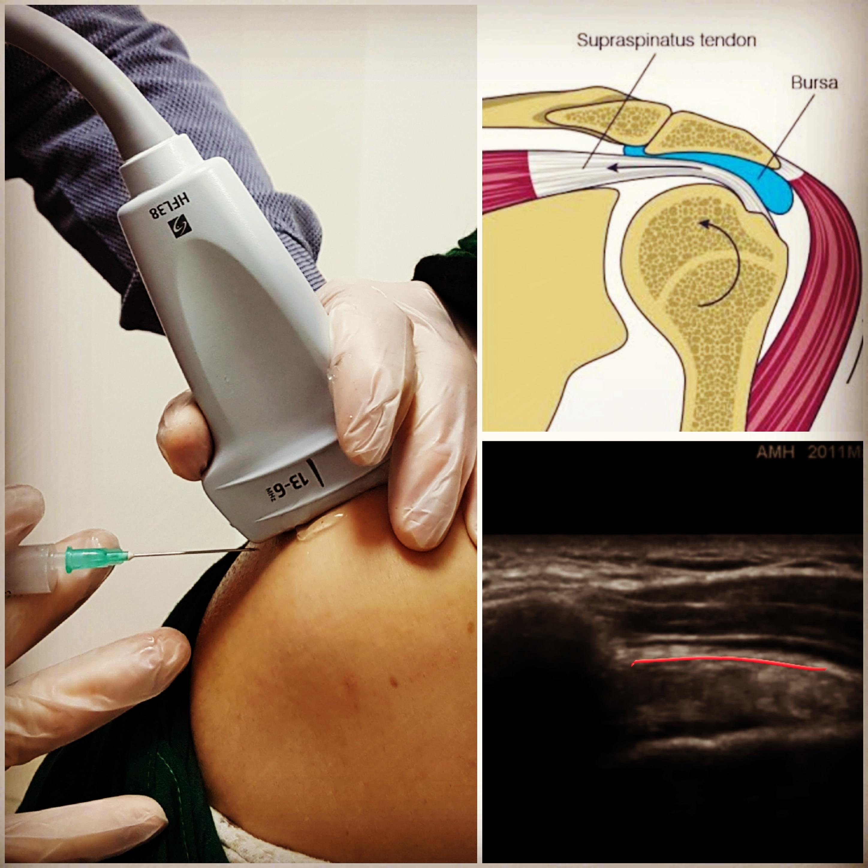 Omuz Ağrılarında Ultrason Rehberliğinde İğne Tedavisi